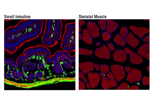 Immunofluorescence Image 1: α-Smooth Muscle Actin (D4K9N) XP® Rabbit mAb