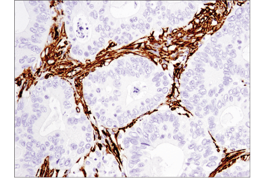 Immunohistochemical analysis of paraffin-embedded human colon carcinoma using α-Smooth Muscle Actin (D4K9N) XP<sup>®</sup> Rabbit mAb.