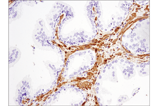 Immunohistochemistry Image 6: α-Smooth Muscle Actin (D4K9N) XP® Rabbit mAb