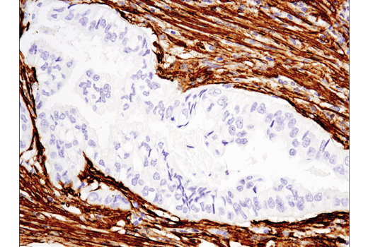 IHC-P (paraffin) - α-Smooth Muscle Actin (D4K9N) XP® Rabbit mAb