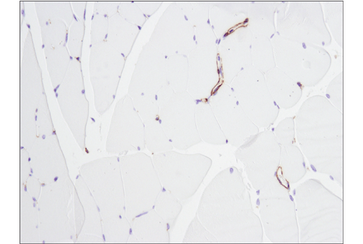 Immunohistochemistry Image 7: α-Smooth Muscle Actin (D4K9N) XP® Rabbit mAb