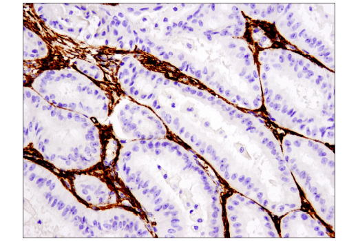 Immunohistochemical analysis of paraffin-embedded human endometrioid carcinoma using alpha-Smooth Muscle Actin (D4K9N) XP® Rabbit mAb performed on the Leica® Bond™ Rx.