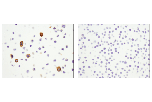 Immunohistochemical analysis of paraffin-embedded THP-1 cell pellet (left, positive) or Jurkat cell pellet (right, negative) using CD11b/ITGAM (D6X1N) Rabbit mAb.