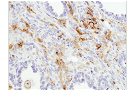 Immunohistochemical analysis of paraffin-embedded human clear cell adenocarcinoma of the ovary using CD11b/ITGAM (D6X1N) Rabbit mAb.