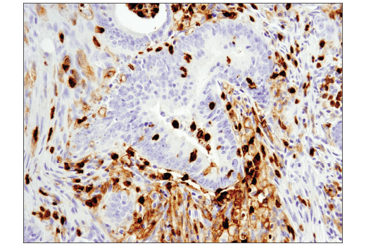 Immunohistochemical analysis of paraffin-embedded human colon carcinoma using CD11b/ITGAM (D6X1N) Rabbit mAb.