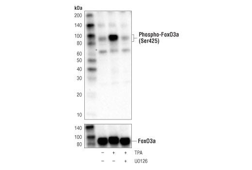 Monoclonal Antibody - Phospho-FoxO3a (Ser425) (D5E9T) Rabbit mAb, UniProt ID O43524, Entrez ID 2309 #64616, Foxo3a
