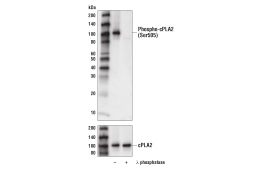 Western blot analysis of extracts from HeLa cells, untreated (-) or treated with λ-phosphatase (+), using Phospho-cPLA2 (Ser505) (D4I2A) Rabbit mAb (upper) or cPLA2 (D11H4) Rabbit mAb #5479 (lower).