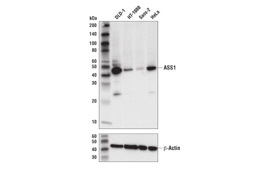 Western blot analysis of extracts from various cell lines using ASS1 (D4O4B) XP<sup>®</sup> Rabbit mAb (upper) or β-Actin (D6A8) Rabbit mAb #8457 (lower).