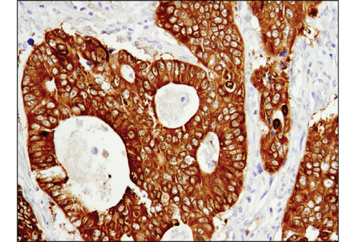 Immunohistochemical analysis of paraffin-embedded human colon carcinoma using ASS1 (D4O4B) XP<sup>®</sup> Rabbit mAb.