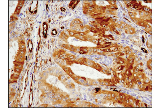 Immunohistochemical analysis of paraffin-embedded human ovarian carcinoma using ASS1 (D4O4B) XP<sup>®</sup> Rabbit mAb.