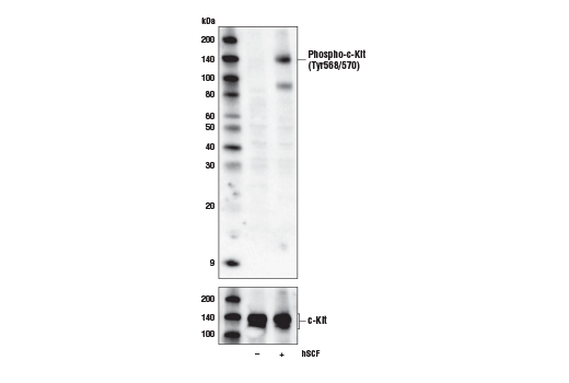 Western blot analysis of extracts from overnight serum-starved H526 cells, untreated (-) or treated with hSCF #8925 (100 ng/ml, 5 min; +), using Phospho-c-Kit (Tyr568/570) Antibody (upper) and c-Kit (D13A2) XP<sup>®</sup> Rabbit mAb #3074 (lower).