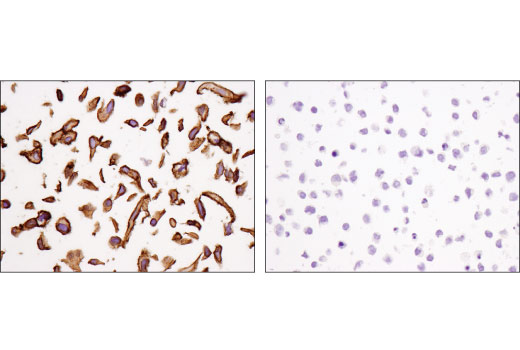 Immunohistochemical analysis of paraffin-embedded A549 cell pellet (left, positive) and Daudi cell pellet (right, negative) using PVR/CD155 (D8A5G) Rabbit mAb.