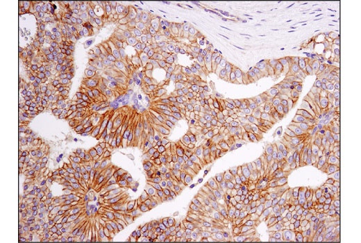 Immunohistochemical analysis of paraffin-embedded human prostate carcinoma using PVR/CD155 (D8A5G) Rabbit mAb.