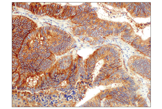 Immunohistochemical analysis of paraffin-embedded human colon adenocarcinoma using PVR/CD155 (D8A5G) Rabbit mAb performed on the Leica® Bond™ Rx.