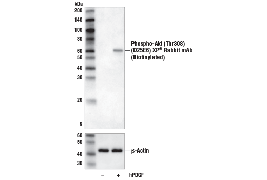 Western blot analysis of extracts from NIH/3T3 cells, untreated (-) or treated with Human Platelet-Derived Growth Factor AA (hPDGF-AA) #8913 (100 ng/ml, 5 min; +), using Phospho-Akt (Thr308) (D25E6) XP<sup>®</sup> Rabbit mAb (Biotinylated) (upper) or β-Actin (D6A8) Rabbit mAb #8457 (lower).
