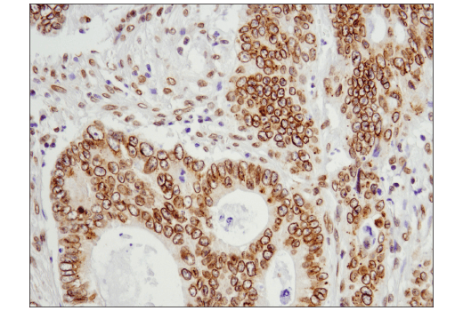 Immunohistochemical analysis of paraffin-embedded human colon carcinoma using Exportin-1/CRM1 (D6V7N) Rabbit mAb.