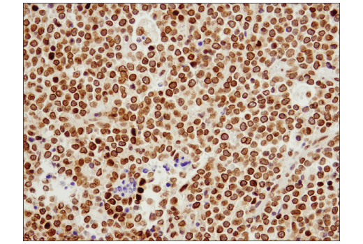 Immunohistochemical analysis of paraffin-embedded human non-Hodgkin's lymphoma using Exportin-1/CRM1 (D6V7N) Rabbit mAb.