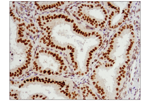 Immunohistochemical analysis of paraffin-embedded human endometrioid adenocarcinoma using Exportin-1/CRM1 (D6V7N) Rabbit mAb.