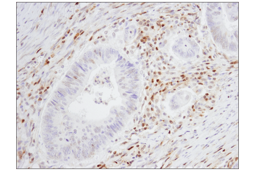 Immunohistochemical analysis of paraffin-embedded human colon carcinoma using p27 Kip1 (SX53G8.5) Mouse mAb (IHC Formulated).