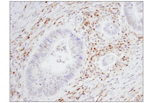 Monoclonal Antibody - p27 Kip1 (SX53G8.5) Mouse mAb (IHC Formulated), UniProt ID P46527, Entrez ID 1027 #83630 - #83630