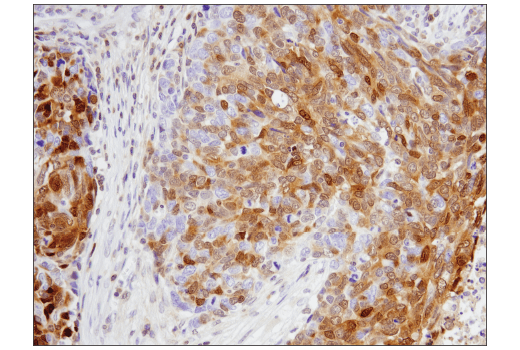 Immunohistochemical analysis of paraffin-embedded human non-small cell lung carcinoma using p27 Kip1 (SX53G8.5) Mouse mAb (IHC Formulated).