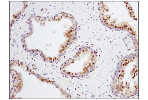 Immunohistochemical analysis of paraffin-embedded human prostate carcinoma using p27 Kip1 (SX53G8.5) Mouse mAb (IHC Formulated).