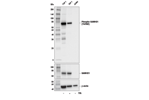 Western blot analysis of extracts from Jurkat and THP-1 cells, untreated (-) or treated with TPA (12-O-Tetradecanoylphorbol-13-Acetate) #4174 (80 nM, 16 hr; +), using Phospho-SAMHD1 (Thr592) (D7O2M) Rabbit mAb (upper), SAMHD1 Antibody #12361 (middle), or β-Actin (D6A8) Rabbit mAb #8457 (lower).