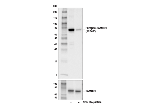 Western blot analysis of extracts from THP-1 cells, untreated (-) or treated with calf intestinal phosphatase (CIP) plus λ phosphatase (+), using Phospho-SAMHD1 (Thr592) (D7O2M) (upper) or SAMHD1 Antibody #12361 (lower).