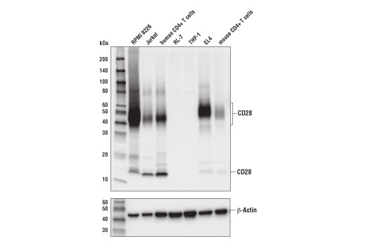 Western blot analysis of extracts from various cell lines and primary cells using CD28 (D2Z4E) Rabbit mAb (upper) or β-Actin (D6A8) Rabbit mAb #8457 (lower).