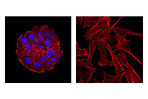 Confocal immunofluorescent analysis of T-47D (left, positive) or MDA-MB-231 (right, negative) cells using Progesterone Receptor A/B (D8Q2J) Rabbit mAb (Alexa Fluor® 647 Conjugate) (blue). Actin filaments were labeled with DyLight™ 554 Phalloidin #13054 (red).