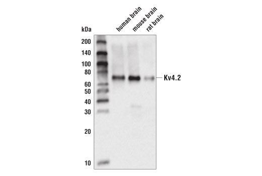 Monoclonal Antibody Immunoprecipitation Voltage-Gated Potassium Channel Activity - count 4