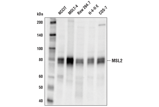Monoclonal Antibody - MSL2 (D4V2N) Rabbit mAb - Immunoprecipitation, Western Blotting, UniProt ID Q9HCI7, Entrez ID 55167 #44006, Chromatin Regulation / Acetylation
