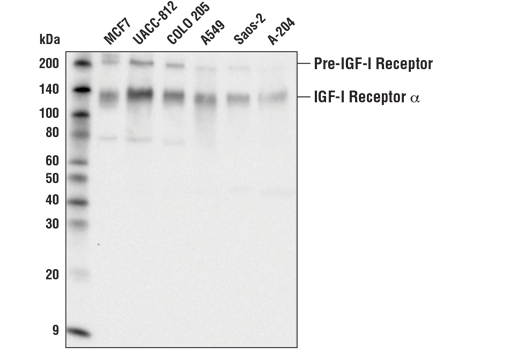 Western blot analysis of extracts from various cell lines using IGF-I Receptor α (D3A2W) Rabbit mAb.