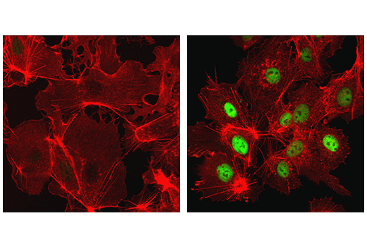 Confocal immunofluorescent analysis of Hep G2 cells, untreated (left) or treated with cobalt chloride (500 μM, 24 h; right), using HIF-1α (D1S7W) XP<sup>®</sup> Rabbit mAb (green). Actin filaments were labeled with DyLight™ 554 Phalloidin #13054 (red).
