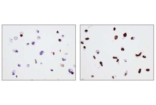 Immunohistochemical analysis of paraffin-embedded OVCAR8 cell pellets, untreated (left) or UV-treated (right), using Phospho-Histone H2A.X (Ser139) (D7T2V) Mouse mAb.