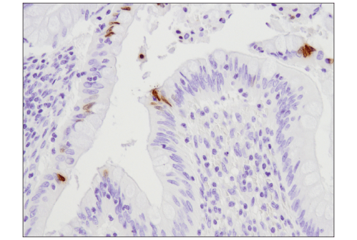 Immunohistochemical analysis of paraffin-embedded human appendix using Phospho-Histone H2A.X (Ser139) (D7T2V) Mouse mAb.