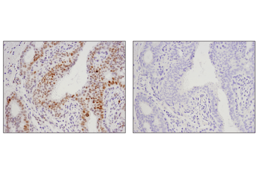 Immunohistochemical analysis of paraffin-embedded human breast carcinoma, untreated (left) or λ-phosphatase-treated (right), using Phospho-Histone H2A.X (Ser139) (D7T2V) Mouse mAb