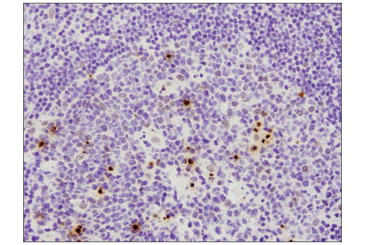 Immunohistochemical analysis of paraffin-embedded human lymph node using Phospho-Histone H2A.X (Ser139) (D7T2V) Mouse mAb.