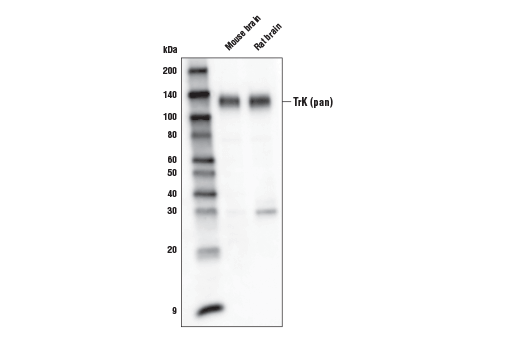 Monoclonal Antibody - TrK (pan) (A7H6R) Rabbit mAb (Biotinylated), UniProt ID P04629, Entrez ID 4914 #34696, Neuroscience