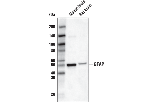 Western blot analysis of extracts from mouse brain and rat brain using GFAP (D1F4Q) XP® Rabbit mAb (Biotinylated).