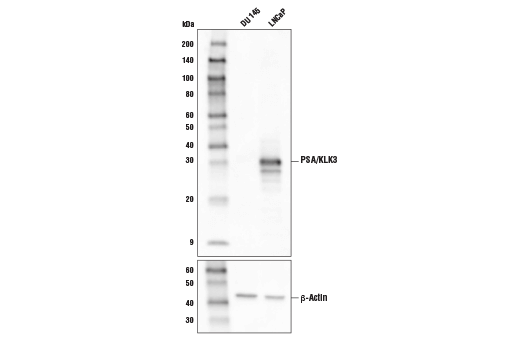 Western blot analysis of extracts from LNCaP cells (PSA positive) and DU 145 cells (PSA negative) using PSA/KLK3 (D6B1) XP<sup>®</sup> Rabbit mAb (Biotinylated) (upper) or β-Actin (D6A8) Rabbit mAb #8457 (lower).