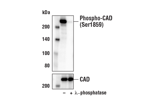 Western blot analysis of extracts from 293T cells, untreated (-) or λ-phosphatase-treated (+), using Phospho-CAD (Ser1859) (D5O6C) Rabbit mAb (upper) and CAD Antibody #11933 (lower).