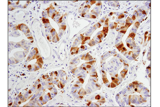 Immunohistochemical analysis of paraffin-embedded human colon carcinoma using Aurora A (D3V7T) XP<sup>®</sup> Rabbit mAb.