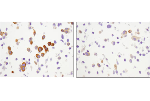 Immunohistochemical analysis of paraffin-embedded LNCaP cell pellets, untreated (left) or rapamycin-treated (right), using Phospho-CAD (Ser1859) (D5K5W) Rabbit mAb.