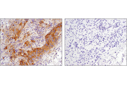Immunohistochemical analysis of paraffin-embedded human lung carcinoma, untreated (left) or λ-phosphatase-treated (right), using Phospho-CAD (Ser1859) (D5K5W) Rabbit mAb.
