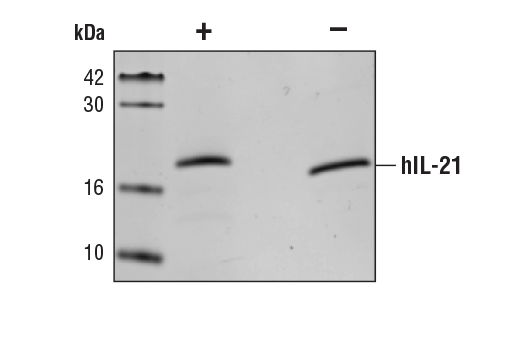 Image 2: Human Interleukin-21 (hIL-21)