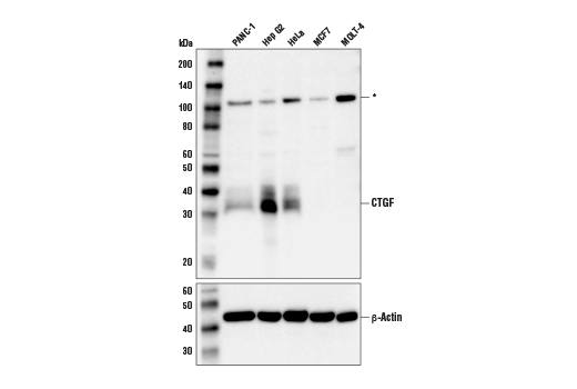 Western blot analysis of extracts from various cell lines using CTGF (D8Z8U) Rabbit mAb (upper) and β-actin (D6A8) Rabbit mAb #8457 (lower). Asterisk indicates a 120 kDa band of unknown identity detected by this antibody in Western blot analysis.