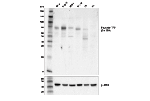 Western blot analysis of extracts from various cell lines using using Phospho-YAP (Ser109) Antibody (upper) and β-Actin (D6A8) Rabbit mAb #8457 (lower). RL-7 cells are negative for YAP expression, confirming specificity of the antibody.
