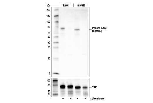 Western blot analysis of extracts from PANC-1 cells (human) and NIH/3T3 cells (mouse), untreated (-) or treated with λ phosphatase (+), using Phospho-YAP (Ser109) Antibody (upper) and YAP (D8H1X) XP<sup>®</sup> Rabbit mAb #14074 (lower).