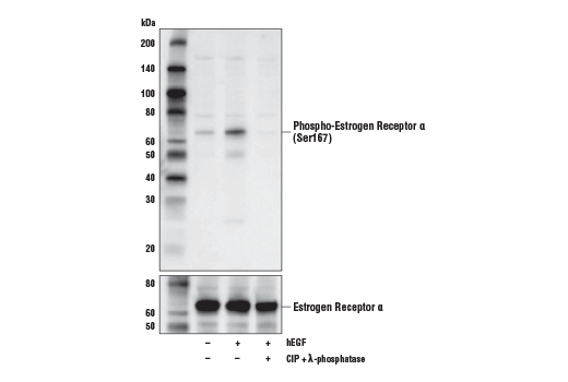 Western blot analysis of extracts from MCF7 cells, either untreated (-), or treated (+) with combinations of the following treatments as indicated: Human Epidermal Growth Factor (hEGF) #8916 (100ng/ml, 15 min), or hEGF-treated and subsequently treated with calf intestinal phosphatase (CIP) and λ-phosphatase, using Phospho-Estrogen Receptor α (Ser167) (D5W3Z) Rabbit mAb (upper) or Estrogen Receptor α (D8H8) Rabbit mAb #8644 (lower).